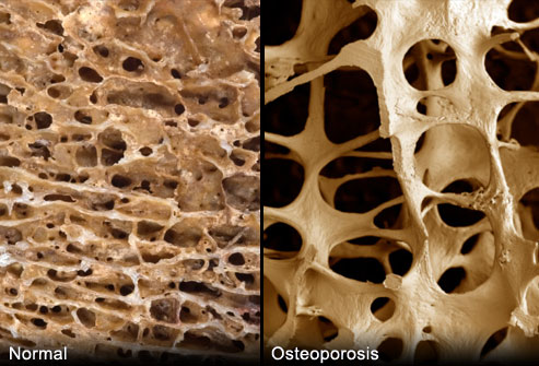 osteoporosis treatments