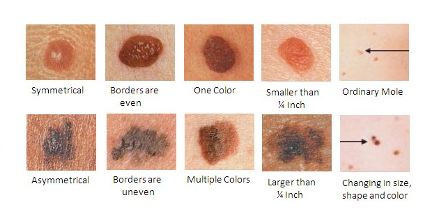 Symptoms of Melanoma And The Treatments Available By HNBT