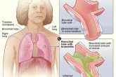 Bronchitis Symptoms, Causes and Home Remedies for Bronchitis