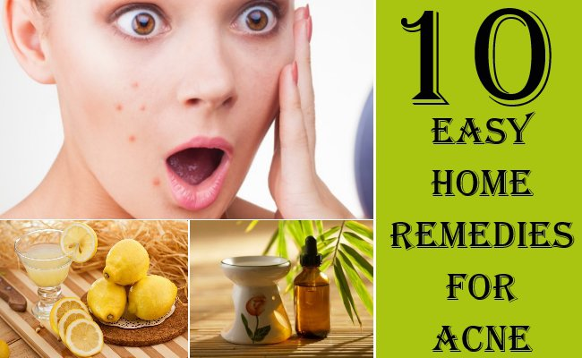 10 Home Remedies For Acne - Natural Remedies To Get Rid Of Acne