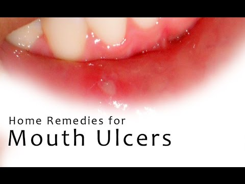 cheek cell diagram labeled cheek ulcer diagram how to heal mouth ulcers? home remedies to cure mouth ulcers #4