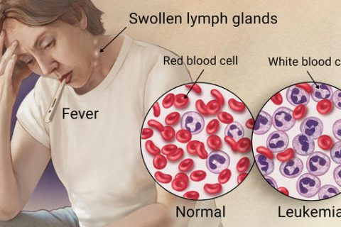 Lukemia Symptoms and Treatments