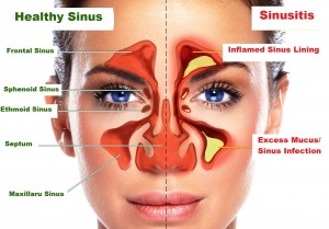 Sinusitis / Sinus Infection Symptoms - Home Remedies of Sinus