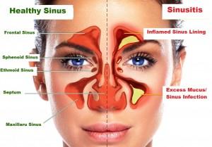 Sinusitis / Sinus Infection Symptoms | 8 Home Remedies of ...
