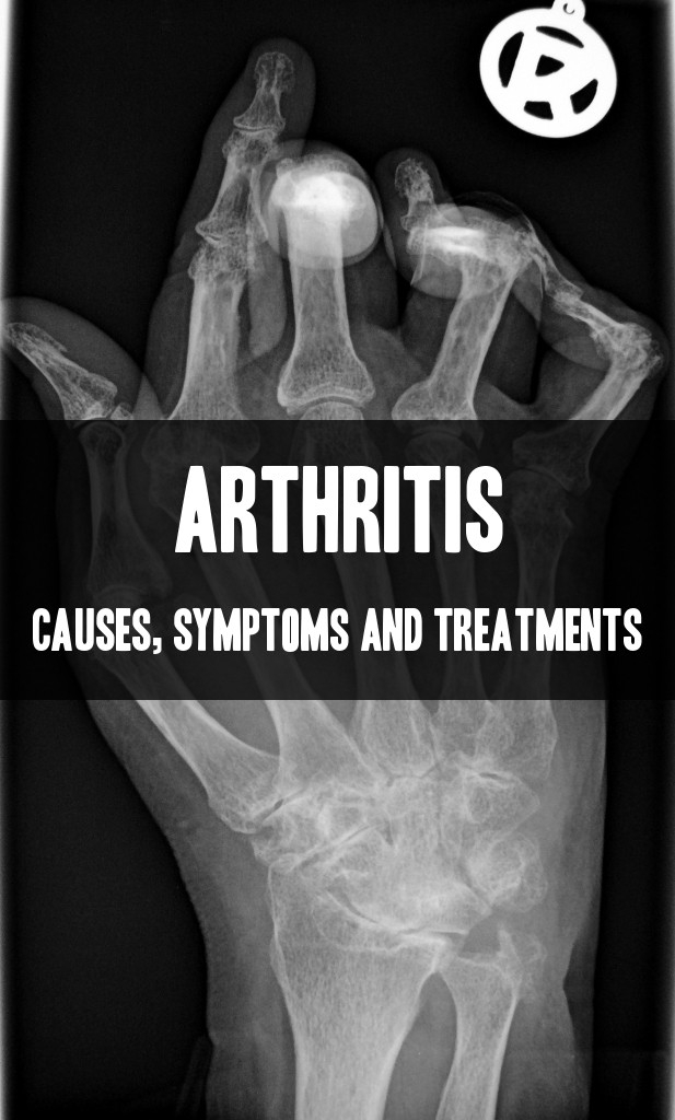 arthritis treatments