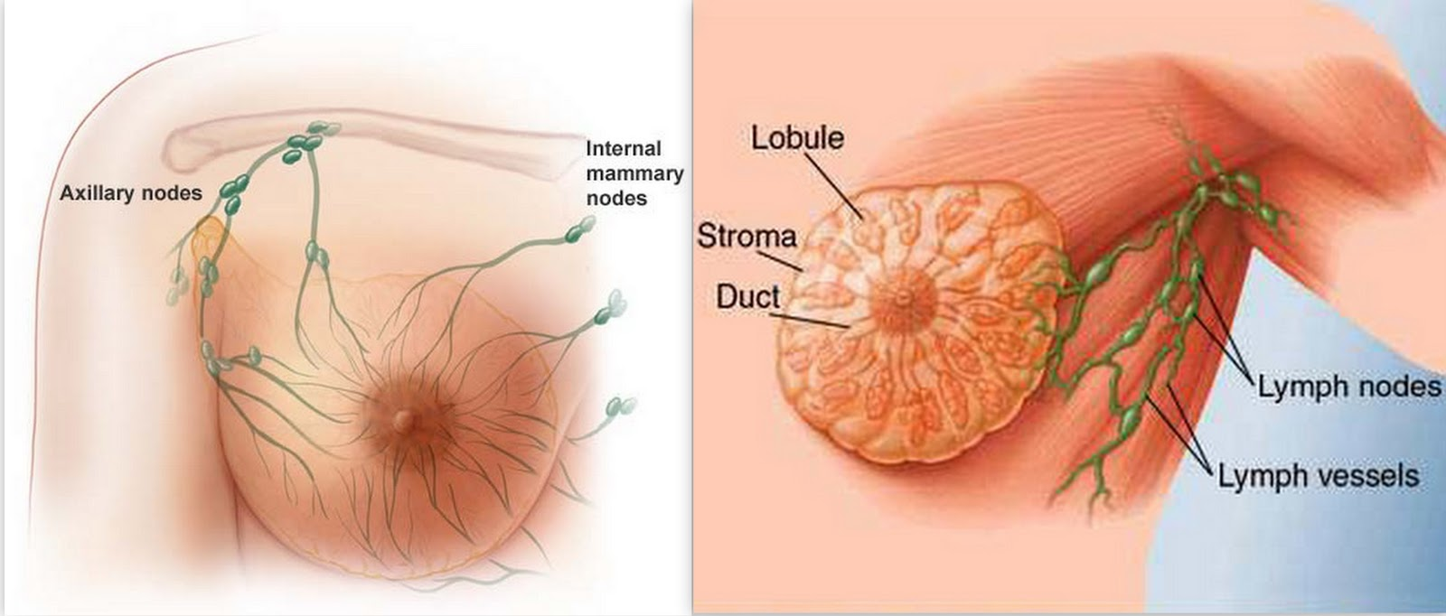 Breast Cancer Symptoms, Stages And Treatment Available-3734