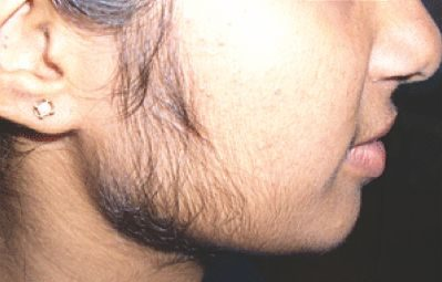 Steroid Side Effects Women - Facial Hair Growth