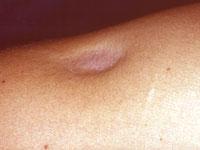 shoulder acne steroids