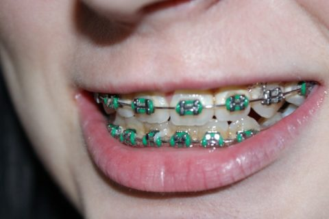 How To Whiten Teeth With Braces?