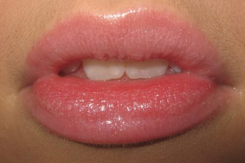 Natural Home Remedies to Get Soft and Pink Lips