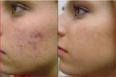 How To Get Rid Of Acne Scars Naturally