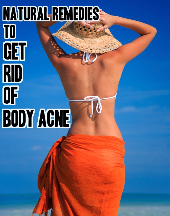 Natural Remedies To Get Rid Of Body Acne