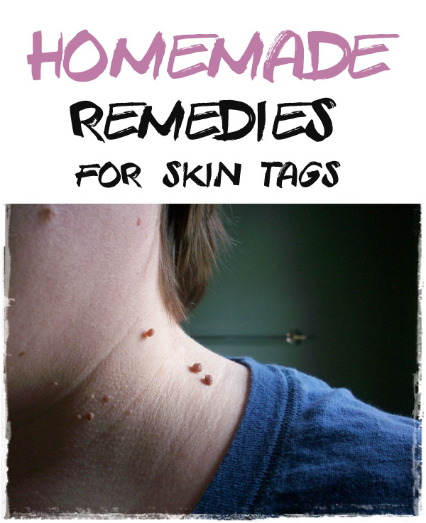 Natural Remedies For Skin Tag Removal