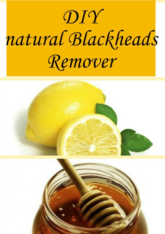 Home Remedies To Get Rid Of Blackheads