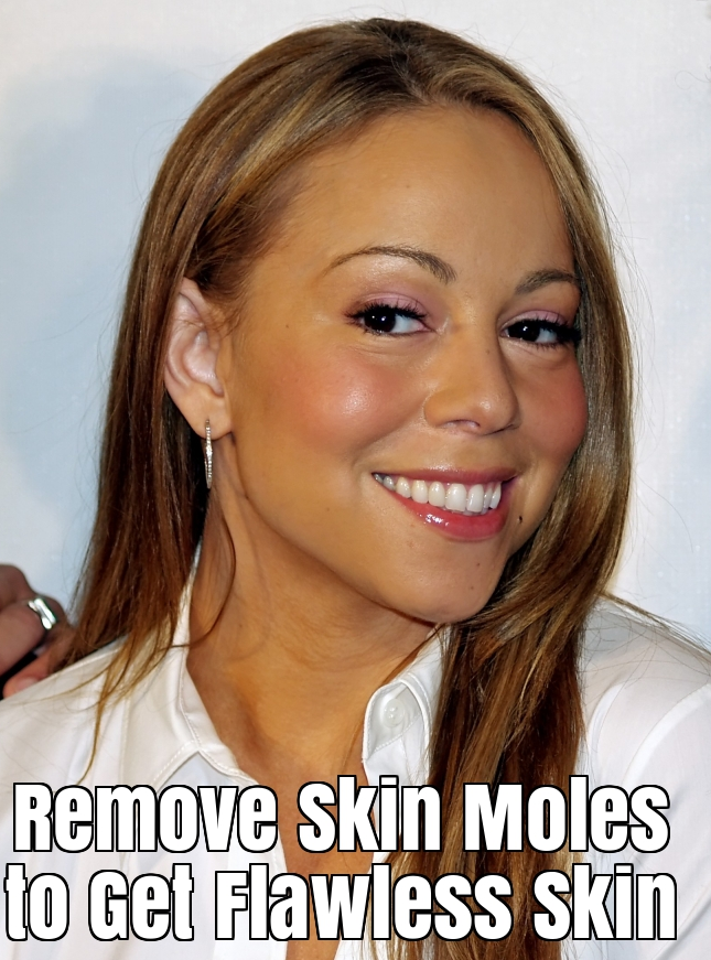 How to Remove Skin Moles to Get Flawless Skin?