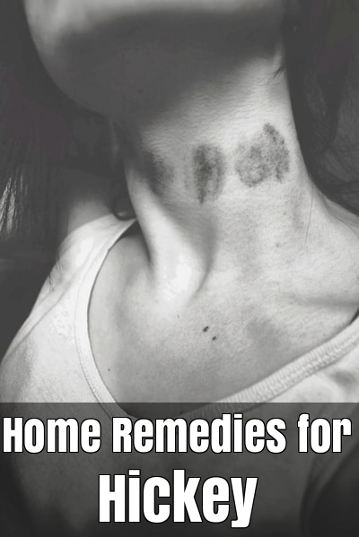 Home Remedies for Hickey