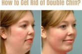 Remedies to Get Rid of Double Chin Fast