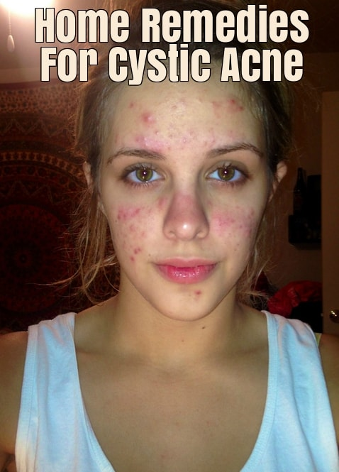 Get Rid Cystic Acne Naturally