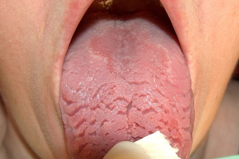 Geographic Tongue Treatment