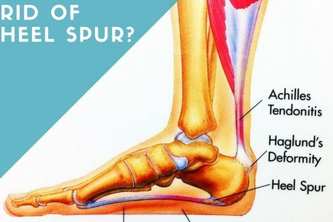 How To Get Rid of Heel Spur?