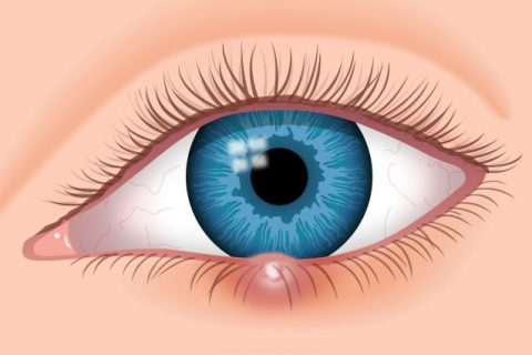 stye treatment