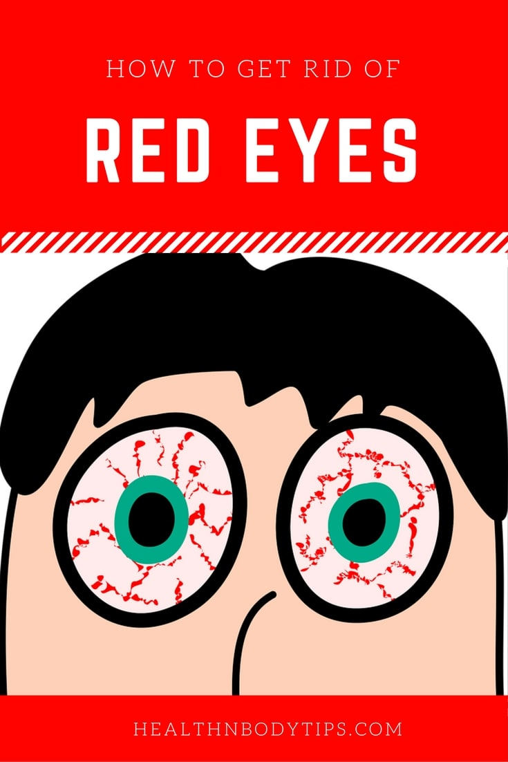 How To Get Rid Of Red Eyes Natural Remedies