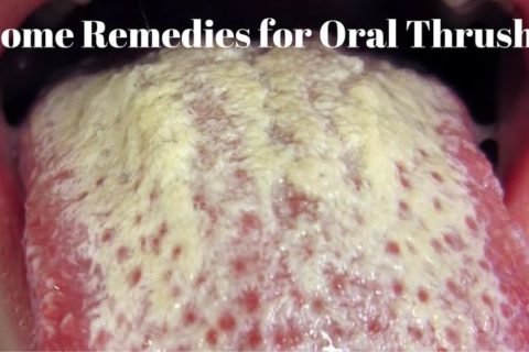 How To Get Rid Of Oral Thrush Naturally Fast