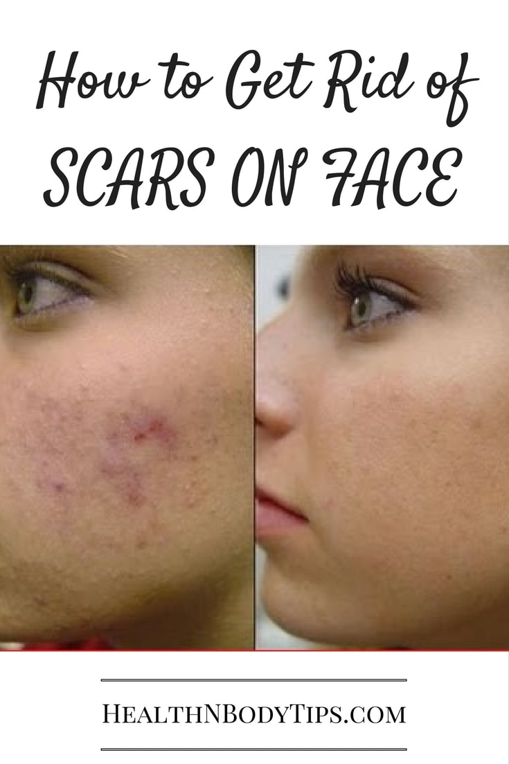 How to Get Rid of Scars on Face?