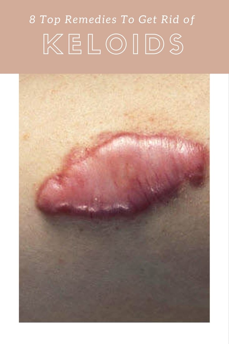 How to Get Rid of Keloids