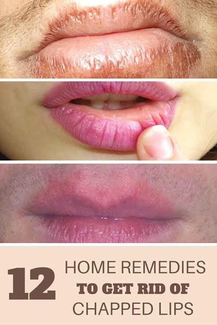 How to Get Rid of Chapped Lips?