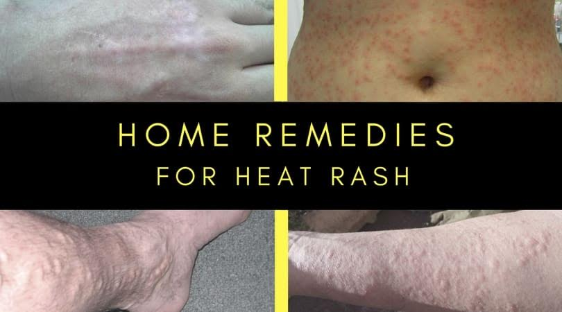 how to get rid of small rash