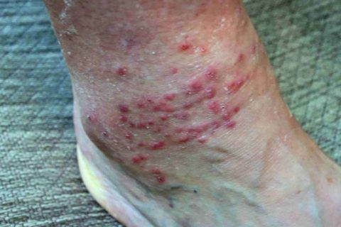 How to Get Rid of Chiggers Bites