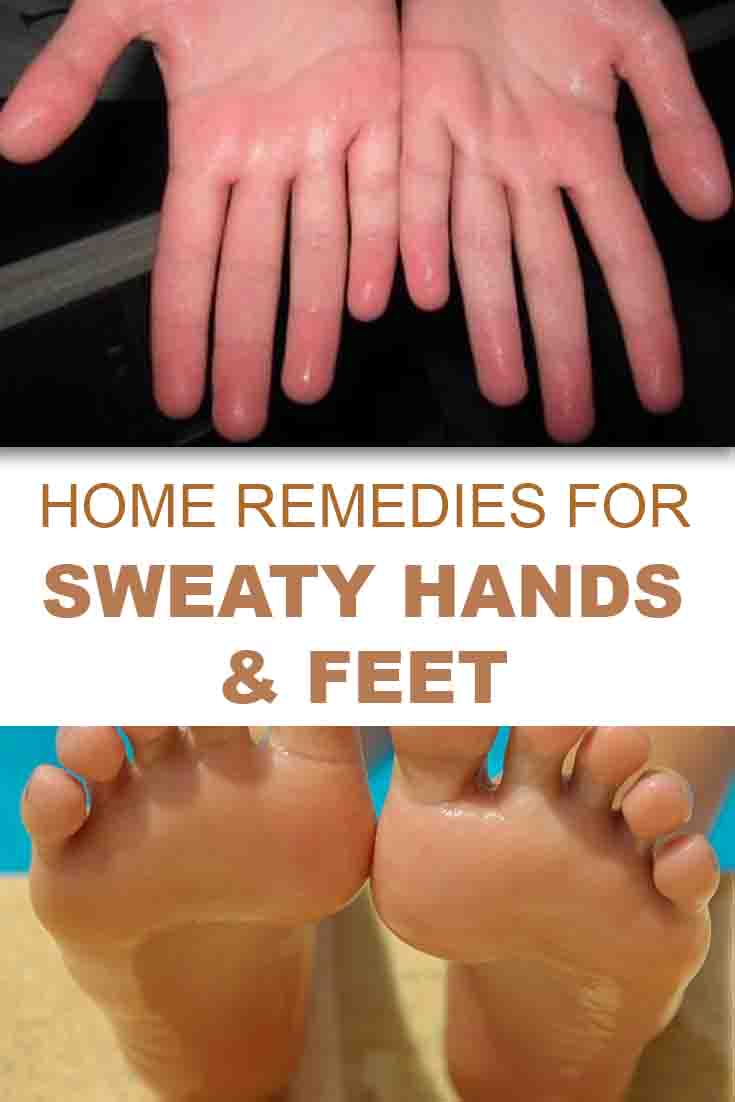 how to get rid of sweaty hands and feet?
