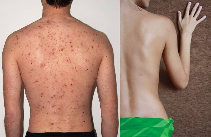 How to Get Rid of Back Acne? Home Remedies To Get Rid of Bacne