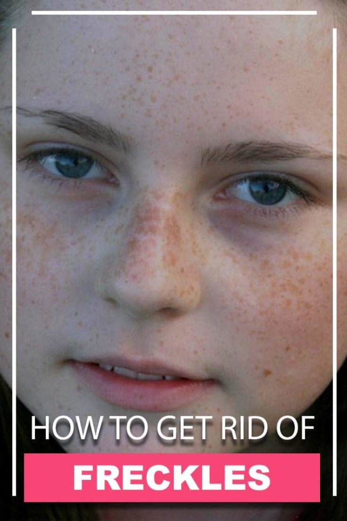 how to get rid of moles and freekles