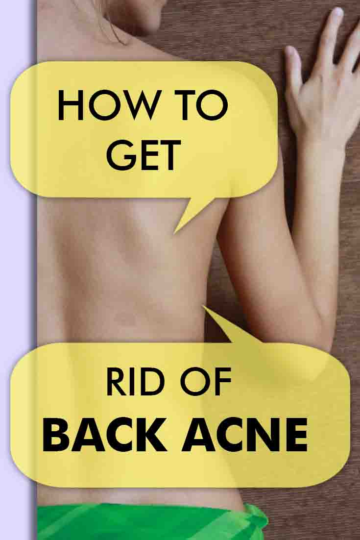 how to get rid of back acne?