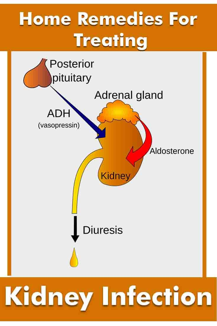 How to Get Rid Of a Kidney Infection?