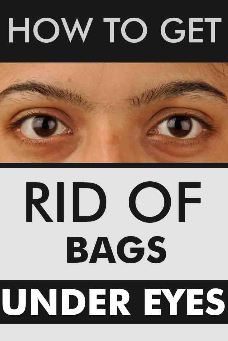 Natural Ways To Get Rid Of Bags Under Your Eyes