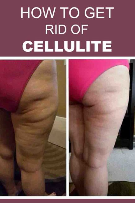 How to Get Rid of Cellulite Fast?