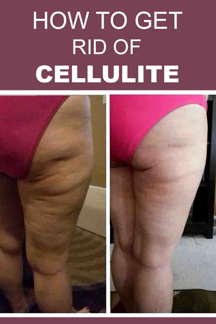 How to Get Rid of Cellulite Fast? Home Remedies and Treatments