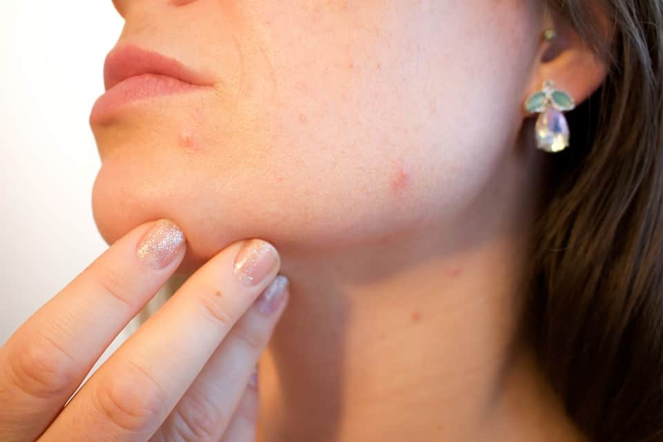 How to Get Rid of Pimples Fast? 8 Best Home Remedies for Pimples