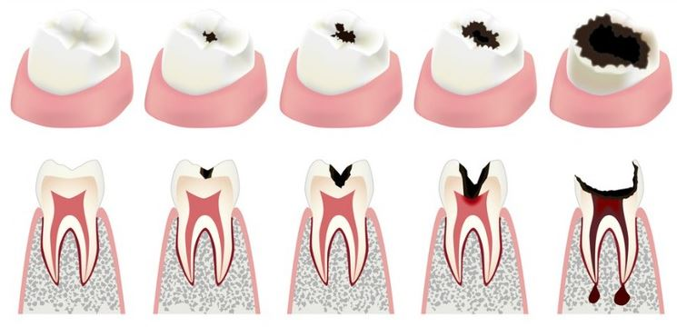 Home remedies for cavities
