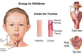 Home remedies for croup