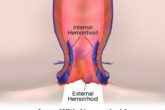 Home remedies for hemorrhoids