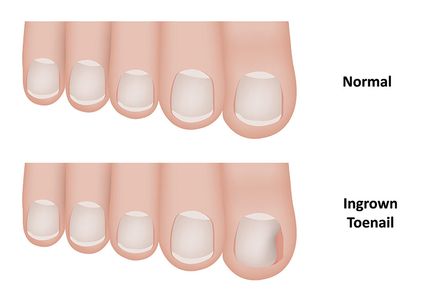 how to cut ingrown toenail at home