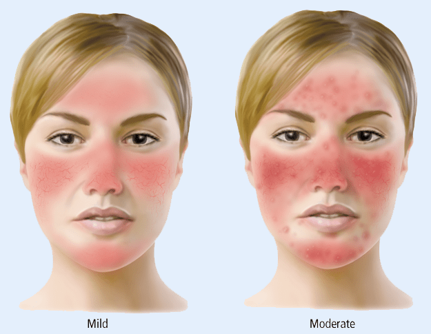 Natural Remedies For Rosacea On Nose