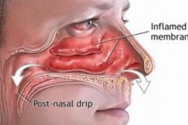 How to stop post nasal drip