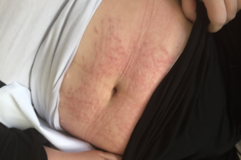 How to deal with postpartum hives