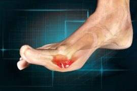 Home remedies for turf toe