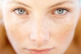 How to get rid of broken capillaries on face